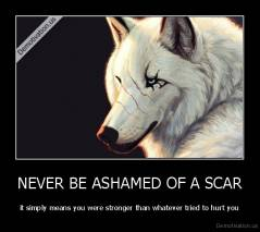 NEVER BE ASHAMED OF A SCAR - it simply means you were stronger than whatever tried to hurt you